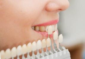 Виниры для зубов цена люберцы