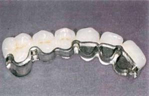 Зубные мосты или мостовидные протезы